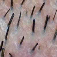 Waxing is a form of hair removal that removes the entire hair from the hair follicle, unlike shaving or clippers which bluntly cut the hair at the surface.