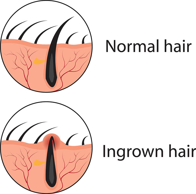waxing with an Ingrown hair in Gainesville